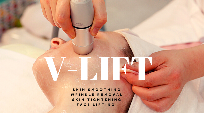 V-LIFT – Treatment that builds collagen!